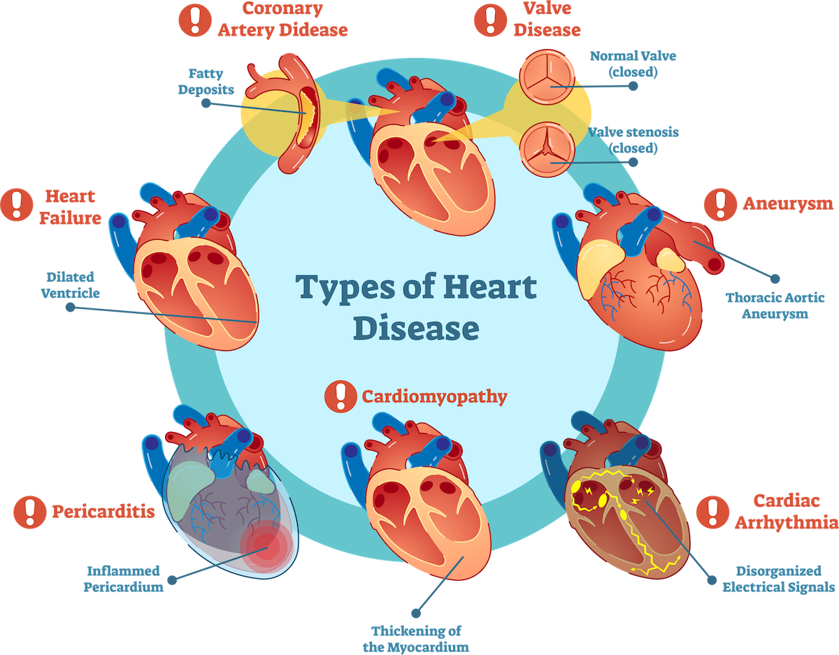 types of heart disease graphic; blog: Am I at Risk for Cardiovascular Disease?